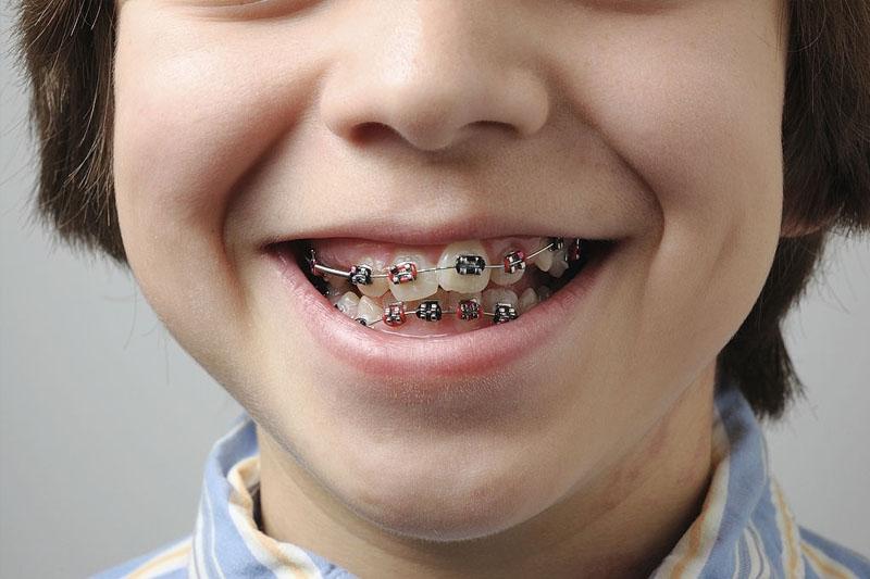Răng khấp khểnh hay mọc sai lệch cần niềng răng chỉnh nha để khắc phục