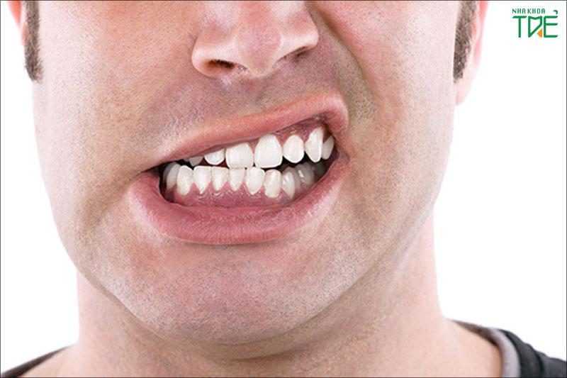 Nghiến răng có thể diễn ra trong vô thức hoặc cả khi có nhận thức