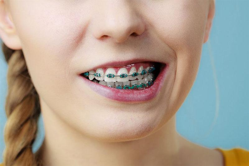 nghiến răng có niềng răng được không?