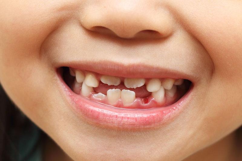 Niềng răng cho trẻ cần can thiệp ngay khi có dấu hiệu răng mọc lệch lạc