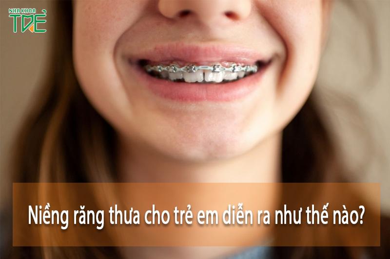 Niềng răng thưa cho trẻ em như thế nào? Giá bao nhiêu tiền?