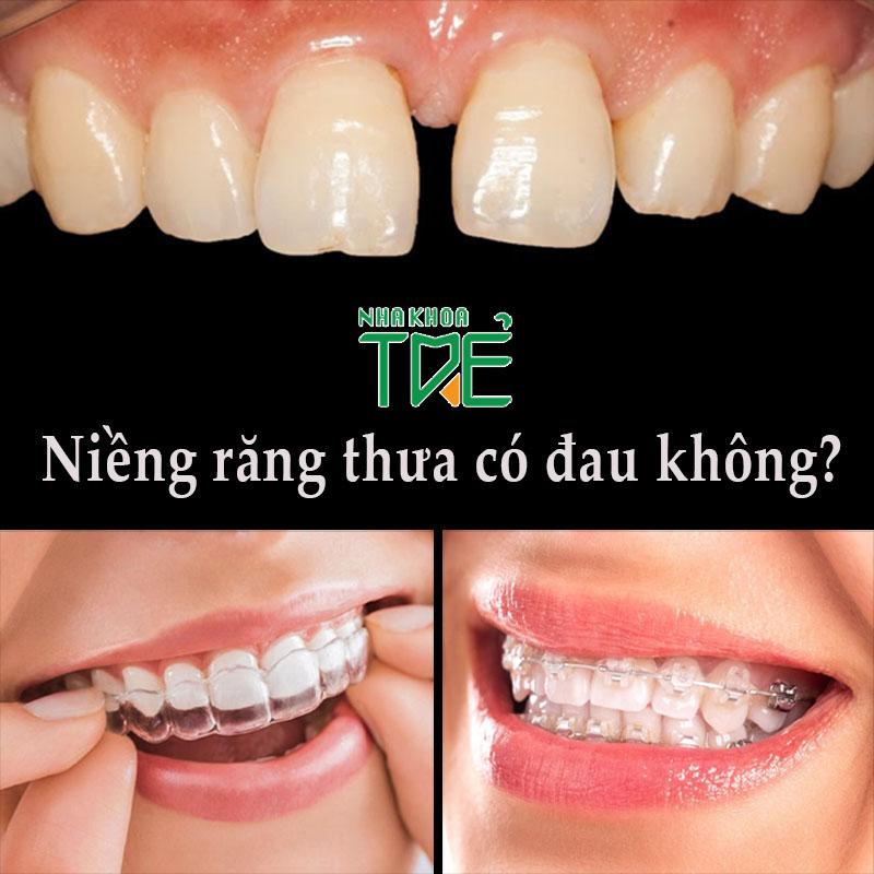 Niềng răng thưa có đau không? Lưu ý giúp hạn chế đau nhức khi niềng