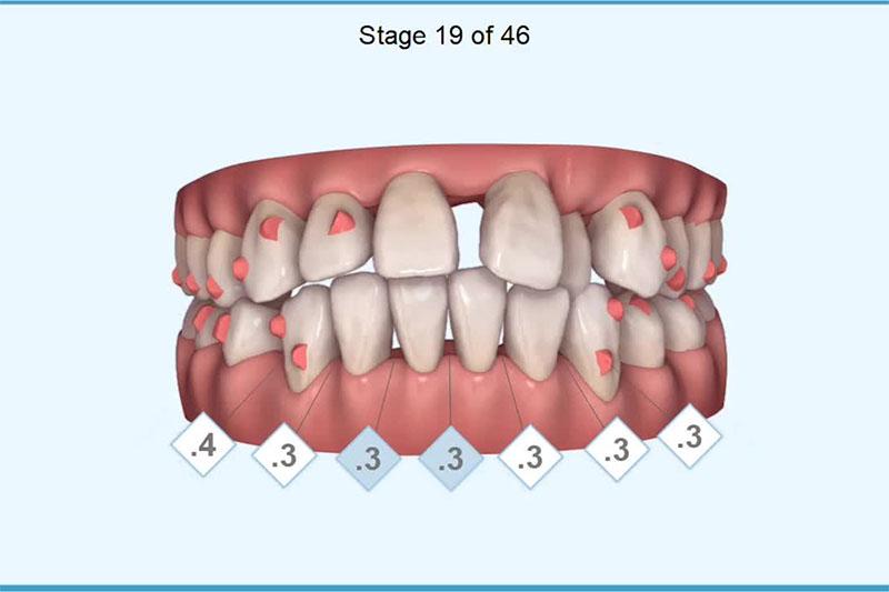 Răng dịch chuyển khi niềng là điều kiện tất yếu của quá trình niềng răng