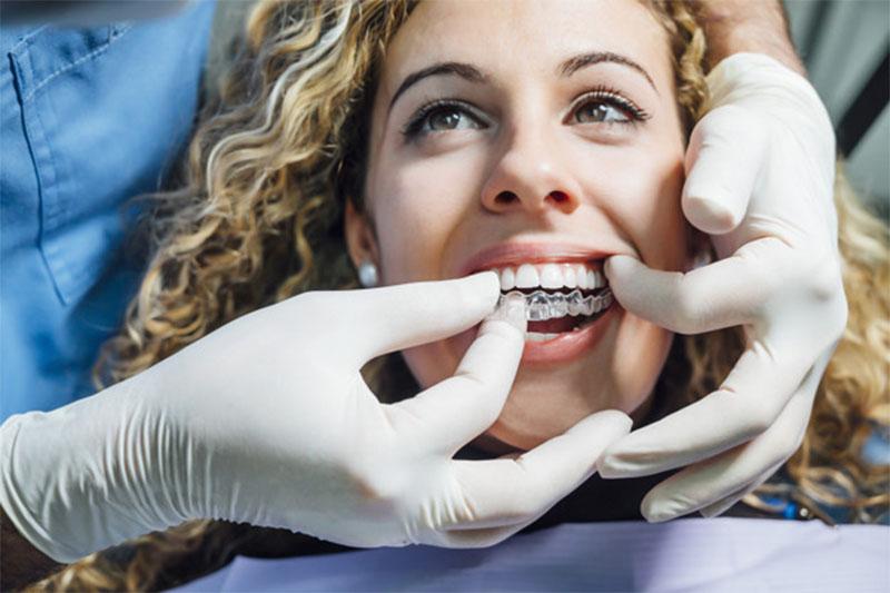 Niềng răng thưa trong suốt sẽ hạn chế được đau nhức trên răng