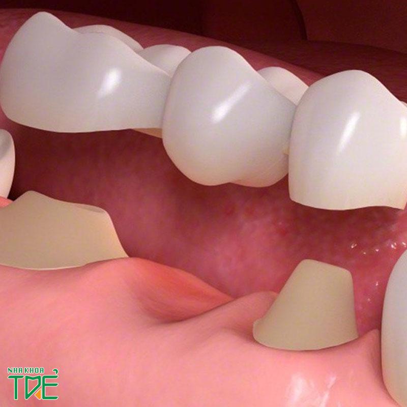 Quy trình trồng răng sứ chuẩn quốc tế diễn ra như thế nào?
