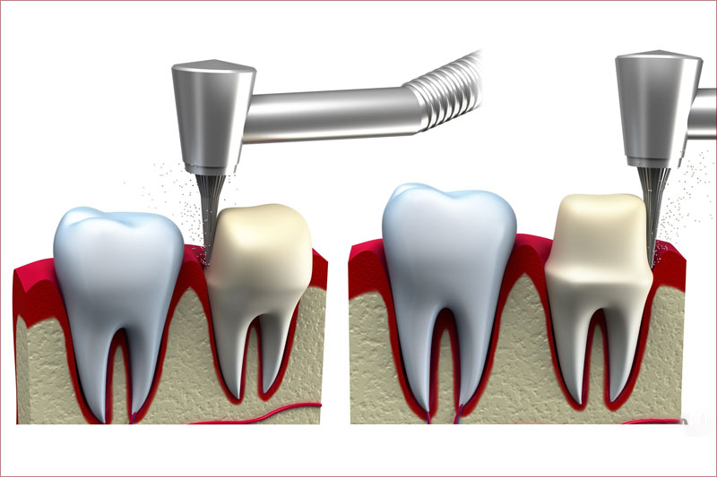 Kỹ thuật mài răng trong quy trình trồng răng sứ đòi hỏi độ chính xác cao
