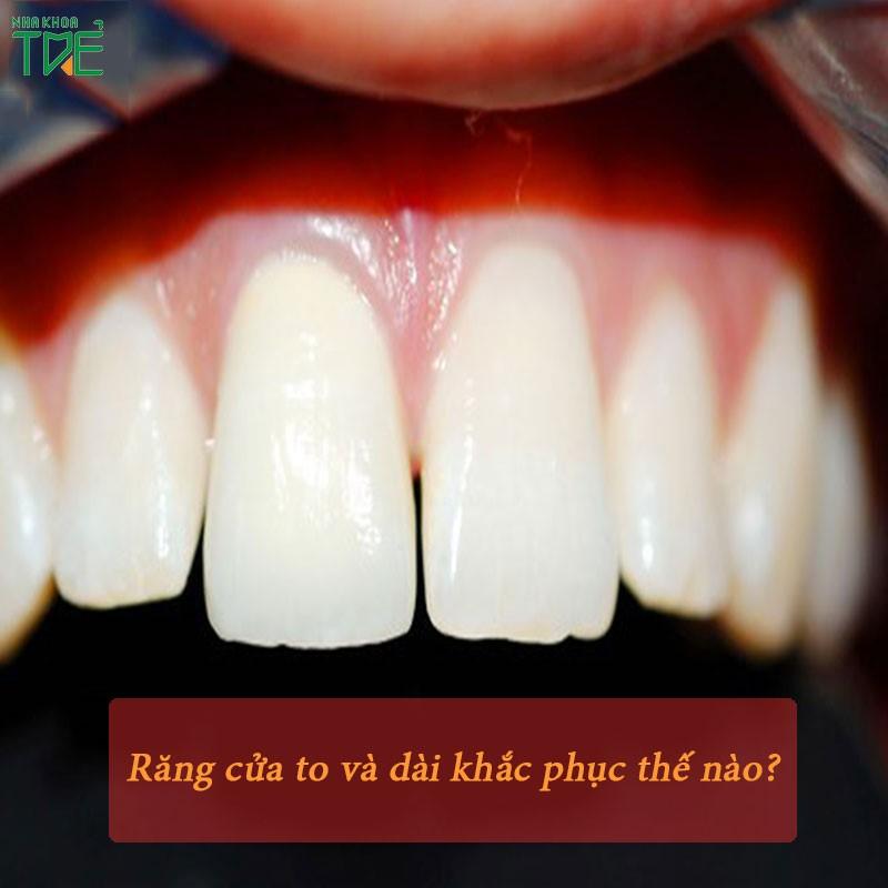 Răng cửa to và dài – Giải pháp khắc phục nhanh chóng và đẹp nhất