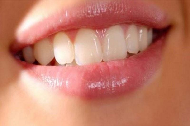 Răng cửa to, dài gây mất cân đối và kém tự tin khi cười