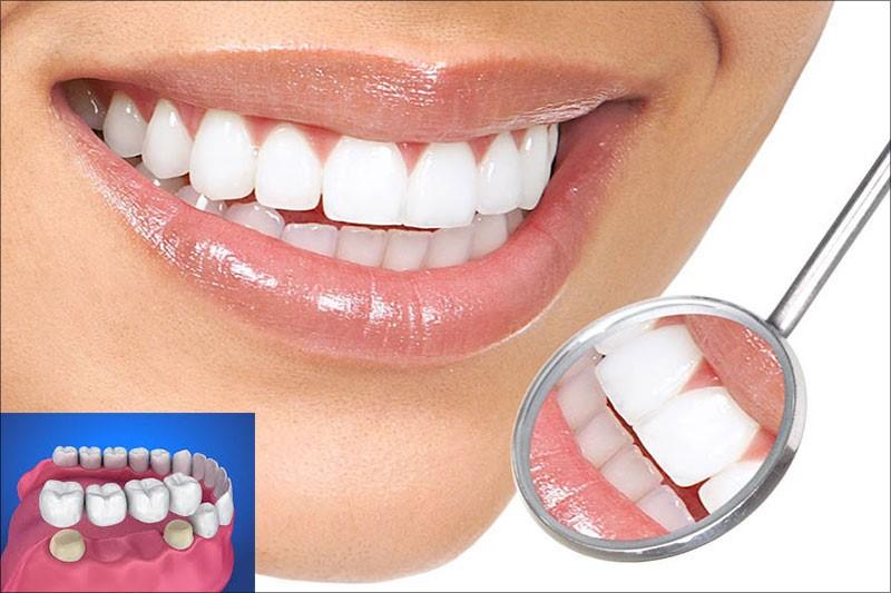 Bọc răng sứ giúp khắc phục răng cửa to và dài nhanh chóng và đẹp nhất