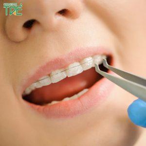 Review niềng răng mắc cài sứ: Những kinh nghiệm khi niềng răng