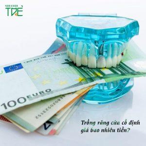 Trồng răng cửa cố định giá bao nhiêu tiền năm 2021?