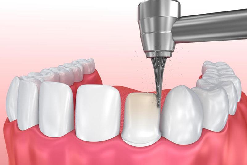 Mài răng để làm cầu răng sứ sẽ gây ê buốt răng trong thời gian đầu