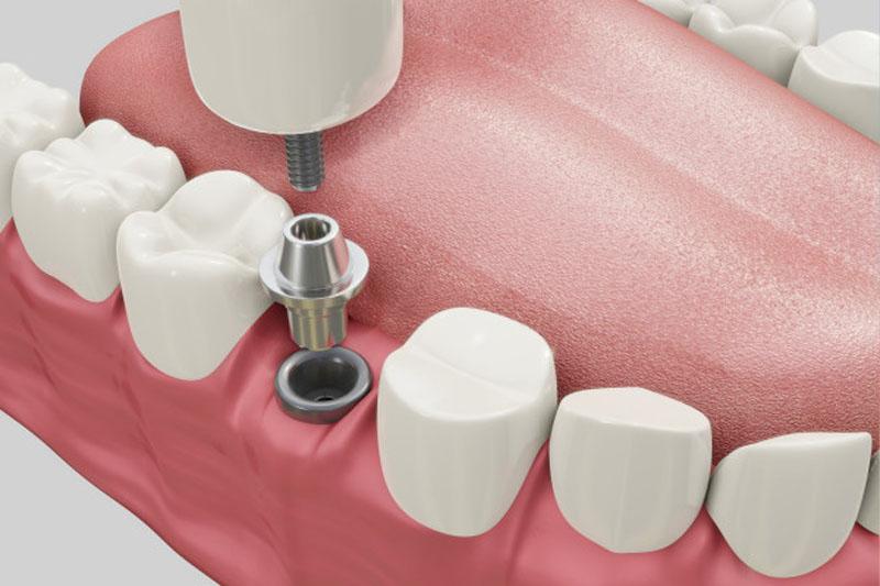 Do tác động đến vùng xương hàm nên trồng răng Implant sẽ không tránh khỏi đau nhức