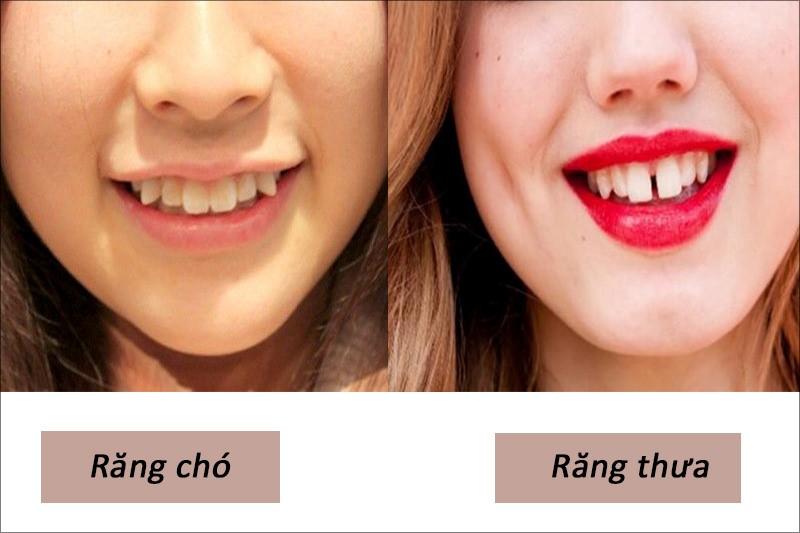 Người có răng chó thường có tính kì quái và có răng thưa thì hay gây rắc rối