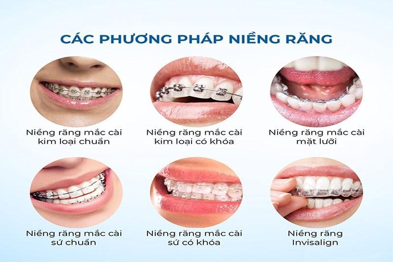 Niềng răng thẩm mỹ giúp bạn có hàm răng phong thủy tốt an toàn nhất