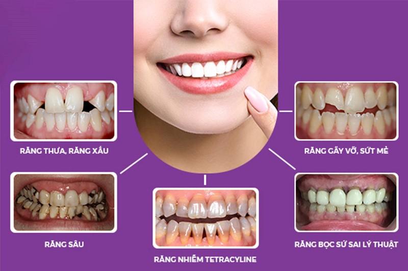 Sở hữu răng có phong thủy tốt nhanh chóng nhất với phương pháp bọc sứ thẩm mỹ