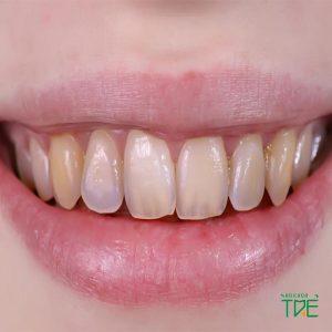 Bật mí các cách làm trắng răng bị xỉn màu tại nhà cực hiệu quả