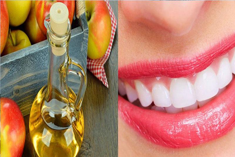 Làm trắng răng với giấm táo vô cùng hiệu quả