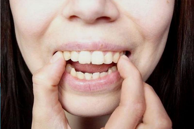 Hàm hô khiến các răng hàm trên chìa ra ngoài quá mức so với răng hàm dưới