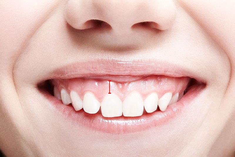 Mức độ nặng nhẹ của hở lợi tính theo tỷ lệ lợi hở so với thân răng cửa