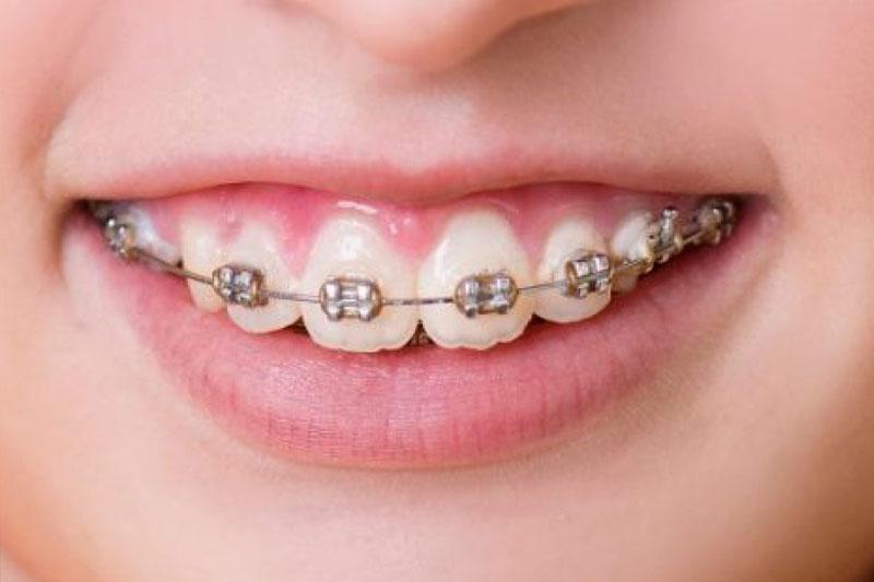 Niềng răng khắc phục các tình trạng hô do răng