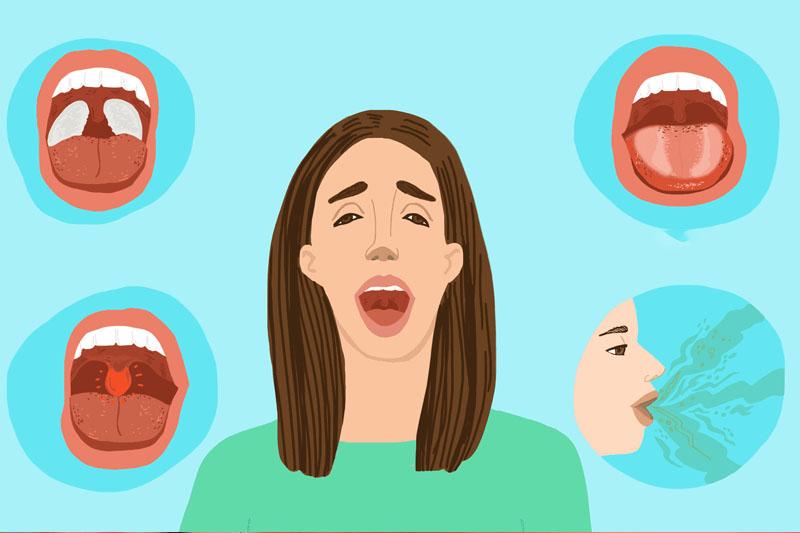Hôi miệng từ cổ họng: Biểu hiện của các bệnh lý nguy hiểm không ngờ