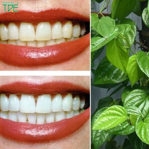Thực hư hiệu quả các cách làm trắng răng bằng lá trầu không là gì?