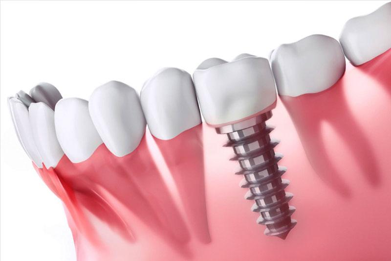 Mọc thiếu răng gây ảnh hưởng gì? Cách khắc phục như thế nào?