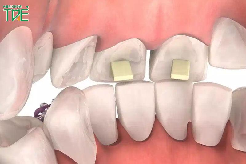 Nâng khớp cắn sâu thực hiện đồng thời với việc đeo khí cụ niềng răng