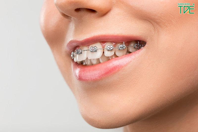 Niềng răng hô mất bao lâu thì đạt kết quả?