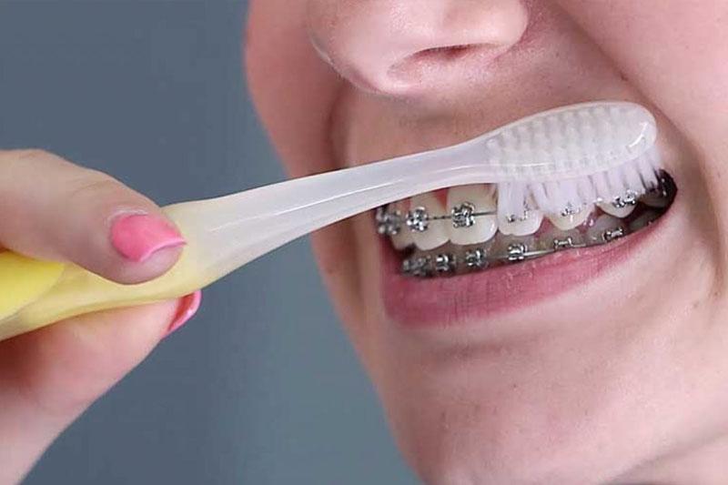 Vệ sinh răng niềng đúng cách để tránh bung tuột mắc cài