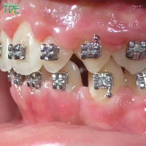 Niềng răng không thành công: Dấu hiệu nhận biết và cách khắc phục là gì?