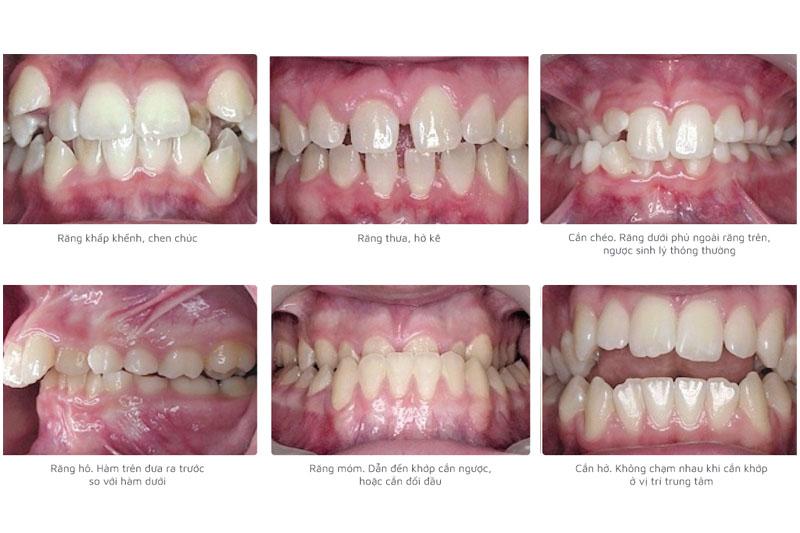 Các trường hợp nên áp dụng phương pháp niềng răng trong suốt Invisalign