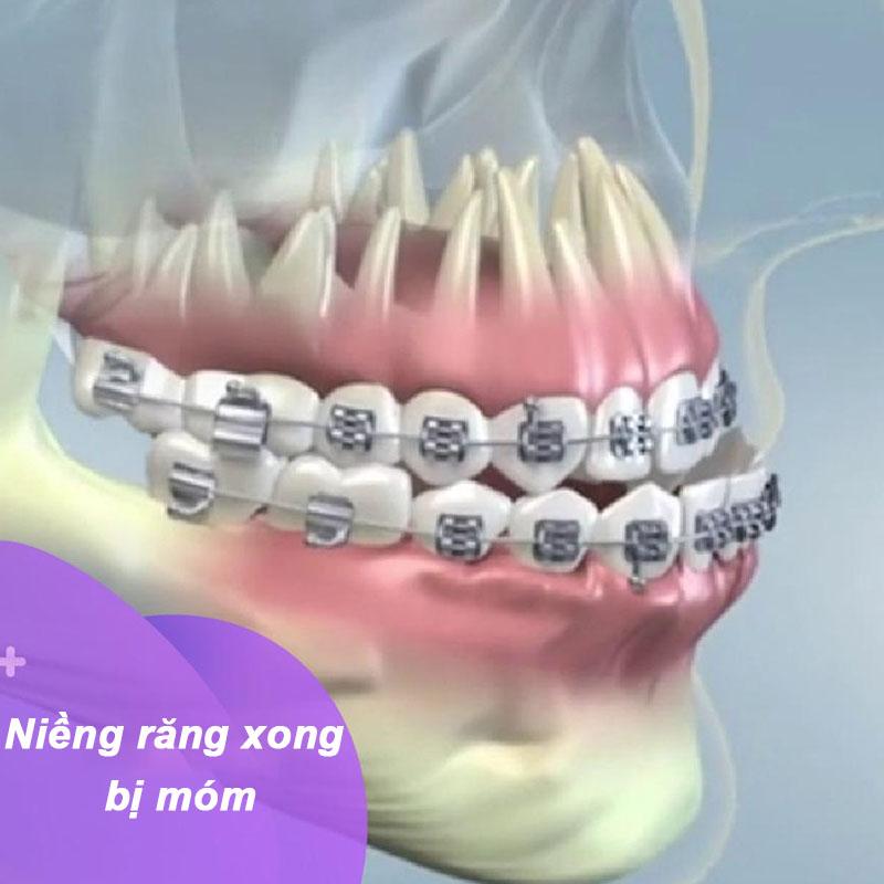 Niềng răng xong bị móm: Nguyên nhân và cách khắc phục như thế nào?