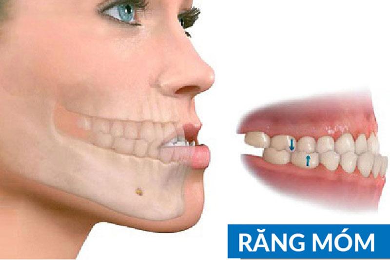Niềng răng xong bị móm nguyên nhân do đâu?