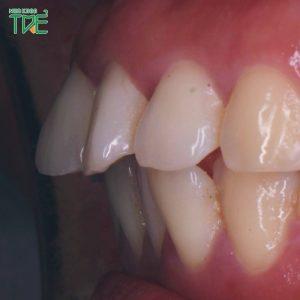 Răng hô nặng có niềng răng được không? Giải pháp nào tốt nhất?