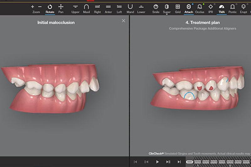 Clincheck cho video mô phỏng quá trình dịch chuyển răng