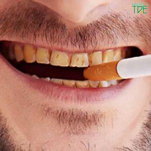 Tẩy trắng răng cho người hút thuốc lá có hiệu quả không?