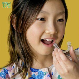 Trẻ bao nhiêu tuổi có thể niềng răng Invisalign?