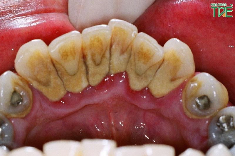 Cao răng nhiều phải làm sao để khắc phục triệt để?