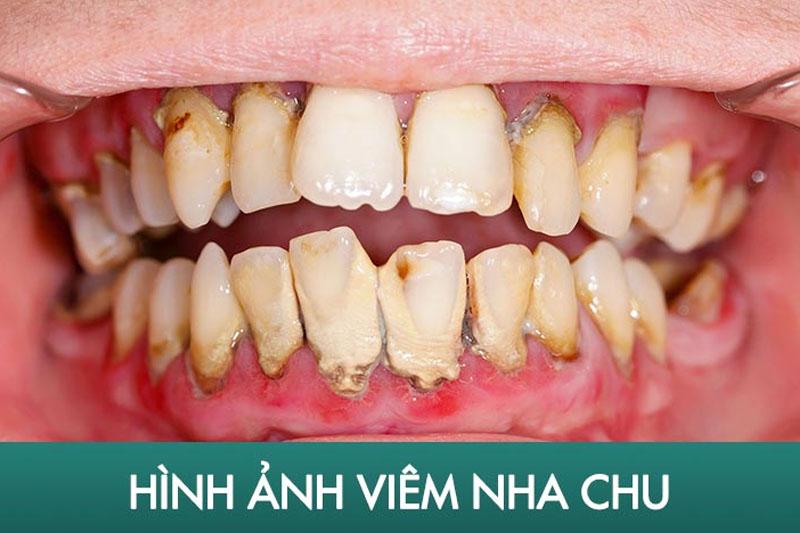 Cao răng càng nhiều càng làm tăng nguy cơ mắc các bệnh răng miệng