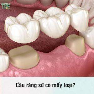 Cầu răng sứ có mấy loại? Nên chọn loại răng sứ nào phù hợp nhất?