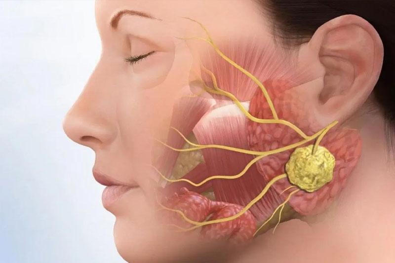 Lệch hàm lâu ngày sẽ gây ra rối loạn khớp thái dương hàm