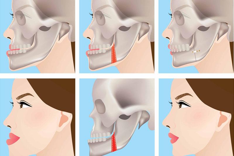 Can thiệp phẫu thuật hàm trong các trường hợp lệch hàm do xương hàm