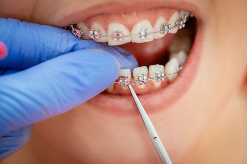 Niềng răng mắc cài kim loại mang lại hiệu quả cao khi chỉnh nha