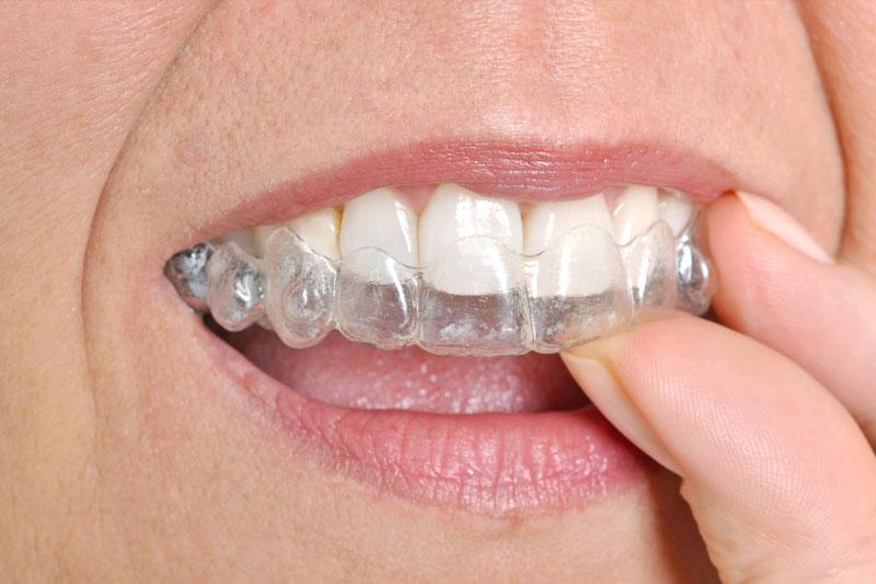 Niềng răng máng trong suốt thuận tiện giúp người niềng thoải mái khi chỉnh nha
