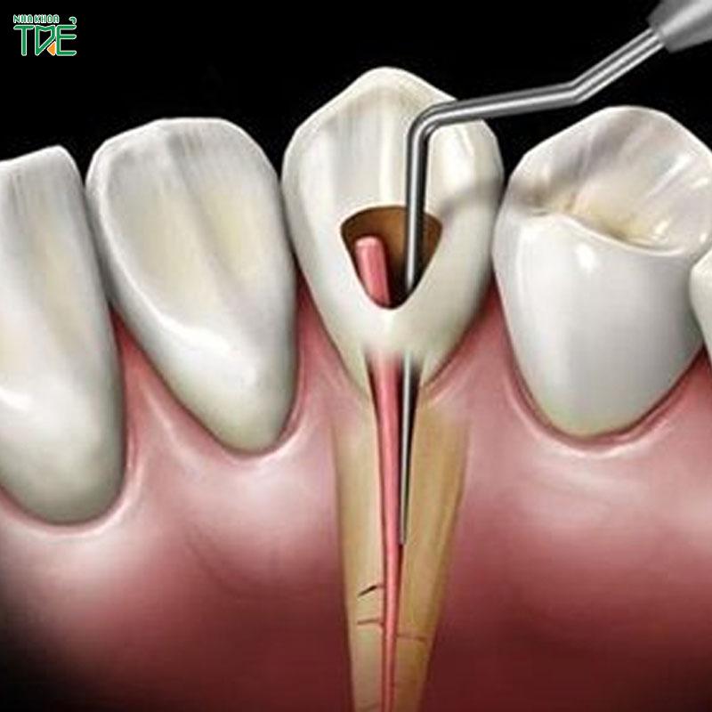 Diệt tủy răng có ảnh hưởng gì không? Cần lưu ý những gì?