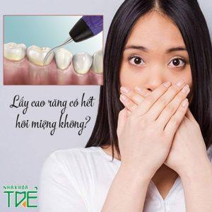 Lấy cao răng có hết hôi miệng không? Lưu ý quan trọng khi lấy cao răng
