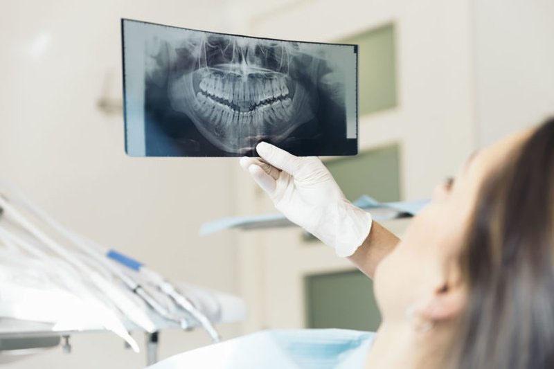 Khi mang thai nên hạn chế chụp X-quang răng