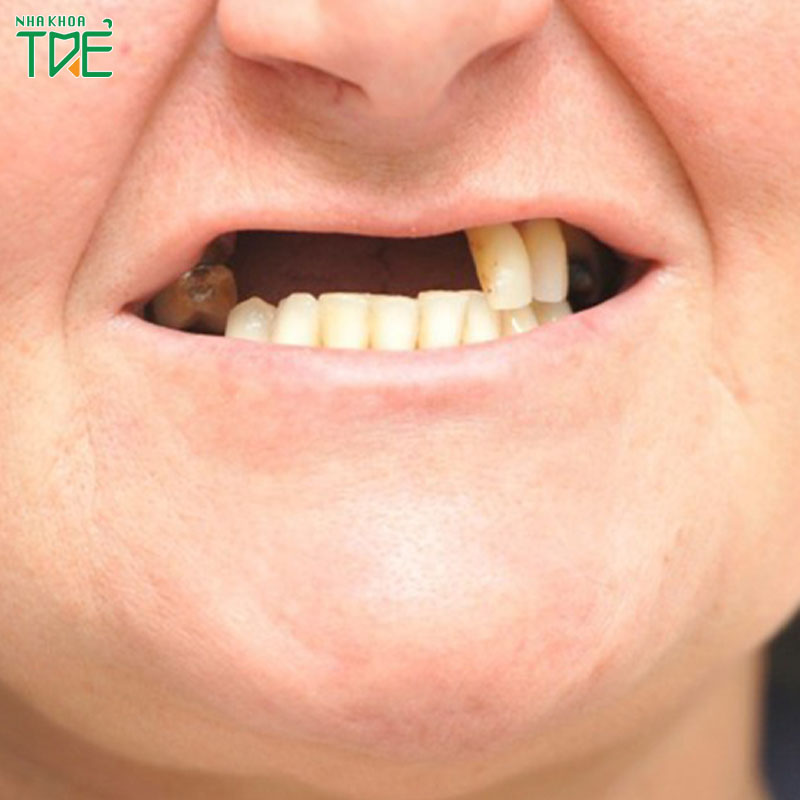 Mất răng gây lệch hàm và nhiều biến chứng nguy hiểm khác